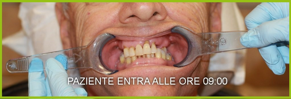 costi dentista napoli